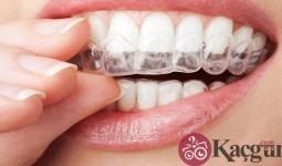 Diş Kaplaması Nasıl Yapılır? Kaç Gün Sürer?